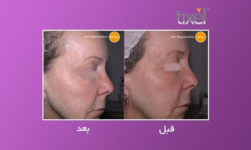 عکس قبل و بعد تیکسل