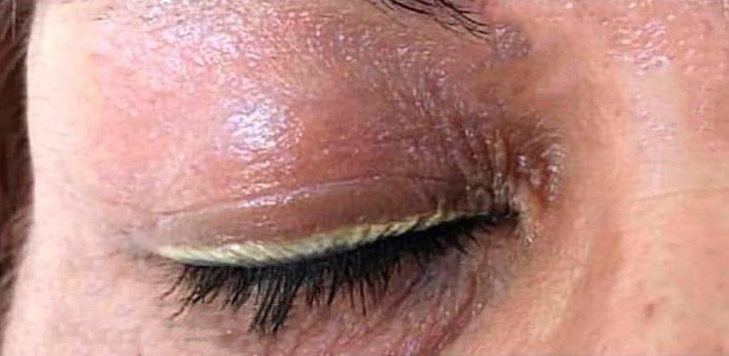 قبل از درمان