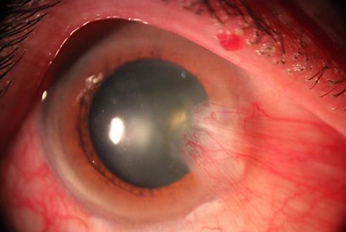 عکس قبل از درمان ناخنک چشم