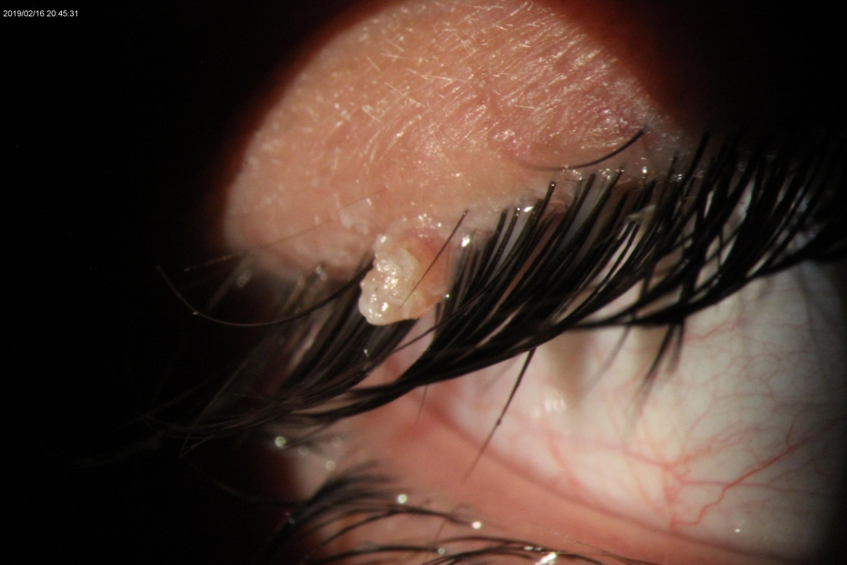 قبل از درمان پاپیلوما