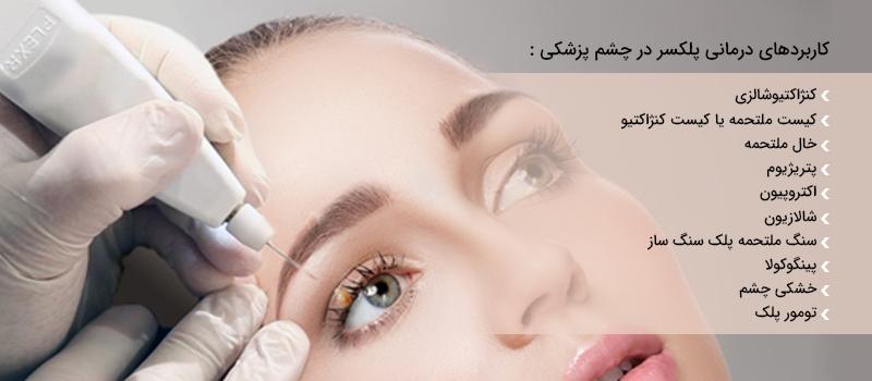 پلکسر چشم پزشکی
