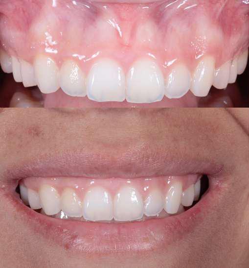 افزایش طول تاج دندان بعد