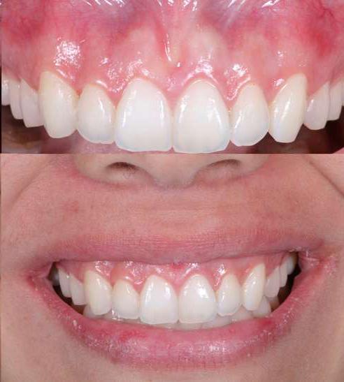 افزایش طول تاج دندان قبل