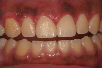 التهاب لثه بعد از درمان