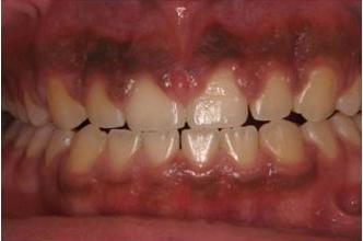 التهاب لثه قبل از درمان