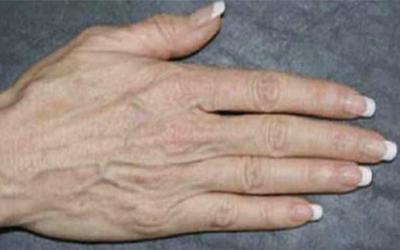 قبل از درمان با تیکسل