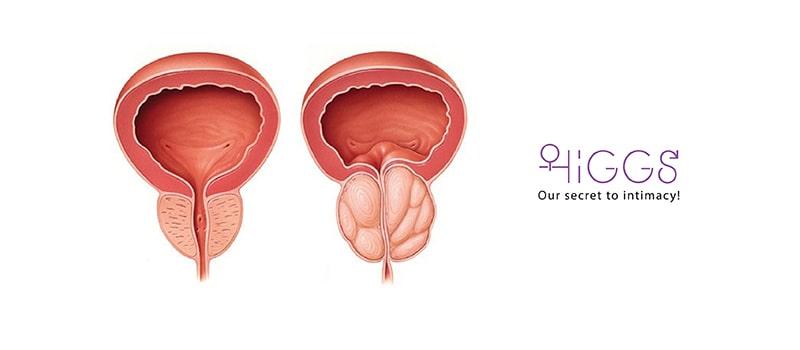غده پروستات